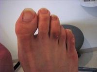 外反母趾5