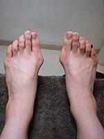 外反母趾3